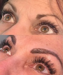 Before & After HD Microblading