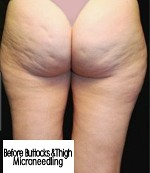 before Buttocks & thigh Microneedling