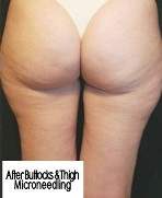 After Buttocks & thigh Microneedling