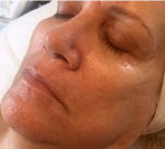 After Biolight & Microneedling Treatment