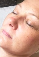after before hydro luxe rejuvenating facial