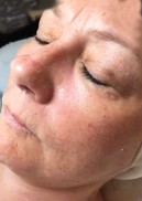 before hydro luxe rejuvenating facial