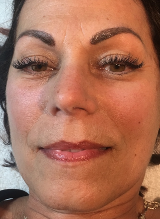 After Microneedling Series of 3