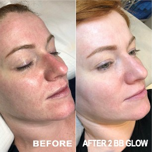 What is BB Glow? BEFORE & AFTER BB GLOW