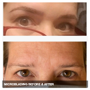 Before & After of HD Microblading
