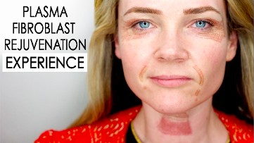 Plasma Face Lift Rejuvention Experience